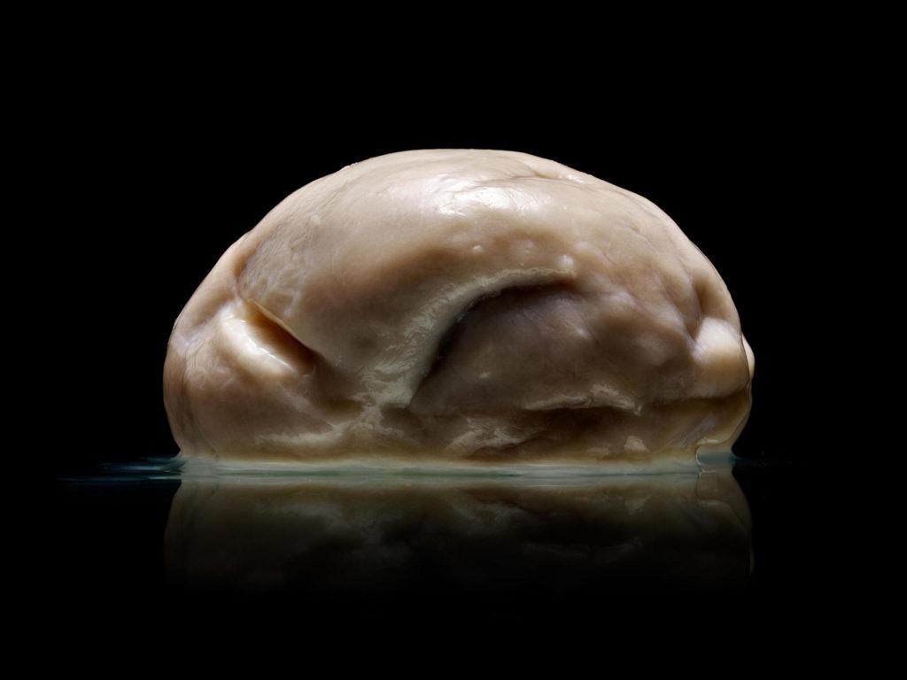 2-milioane-de-romani-au-creierul-plat