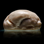 Descoperire şocantă - 2 milioane de romani au creierul plat !